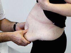 Ожирение обходится миру в 2 триллиона долларов в год